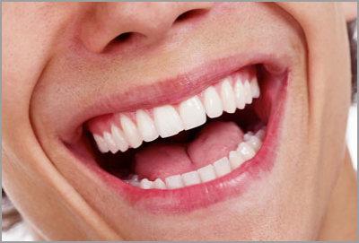 Zoom-Bleaching beim Zahnarzt in Koblenz